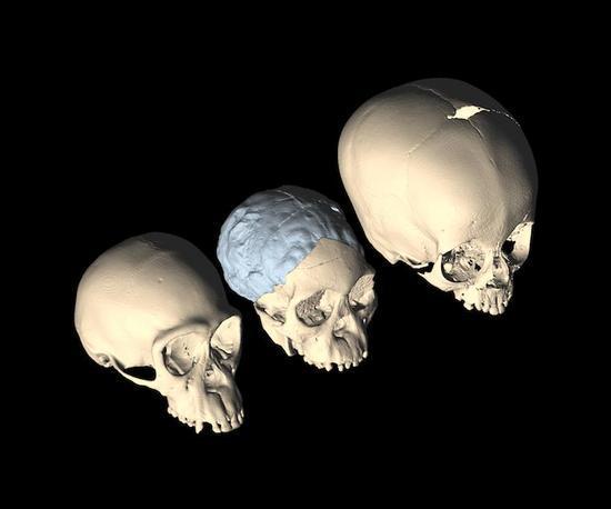 Soft Spots On Skull Adults