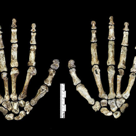 Fossil hand (palm and dorsum) of H. naledi