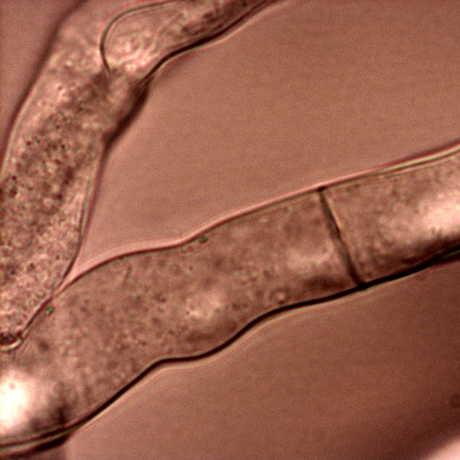The fungus Neurospora crassa, by Roland Gromes
